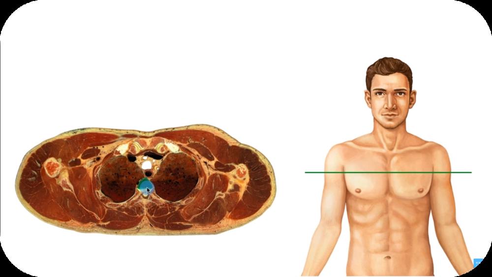 Cross sectional Anatomy for Beginners   8 Uploads