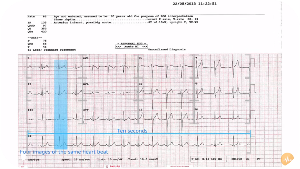 ECG Tutorials and Cases - ECGZone   15 Uploads