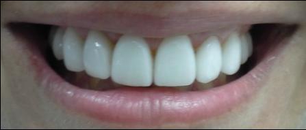 porcelein veneers 2.png