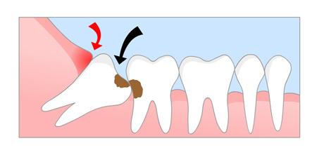 wisdom teeth 1.jpg