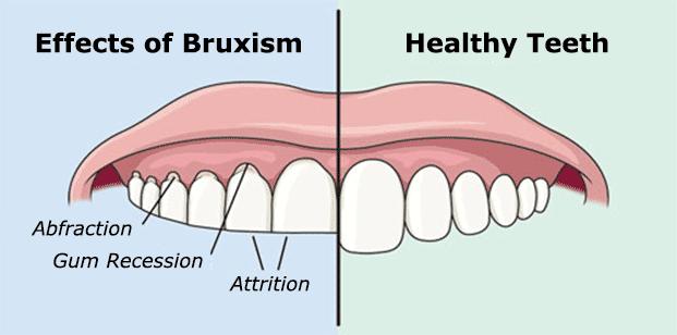 bruxism.png