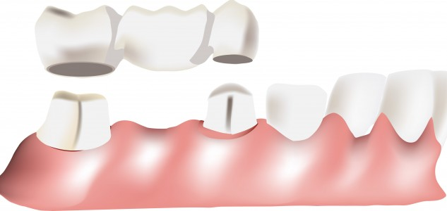 Dental-Bridge-633x300.jpg