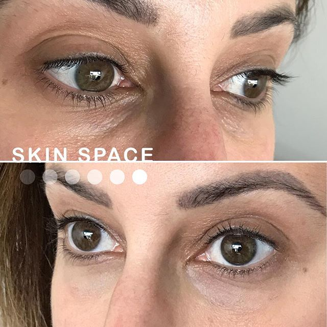 Just like brows frame our eyes, under eye dark circles or bags make us look tired. Concealer can crease and doesn't look natural ☹️. Come in to see what treatments would give you a younger, refreshed look! 💕💕 . .  #inmybag  #abundance #prosperity #manifestation #love #constantchange #exponentialgrowth #bossbabe #blackbusiness #mompreneur . . . . . .#microblading #microbladingla #eyebrowtattoo #medspa #motd #browtransformation #featherbrows #featheredbrows #browlift #hermosabeach  #redondobeach #hermosabeachpier #hermosalocal  #wakeupandmakeup #3deyebrows #manhattanbeach#longbeach @bolt_production @allmodernmakeup @Wakeupandmakeup @hudabeauty @makeupgoals @fiercesociety @monakattan @nikita_dragun @_browsbyash @archaddicts