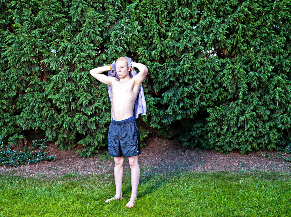 Living with Albinism-Colin copy.jpg
