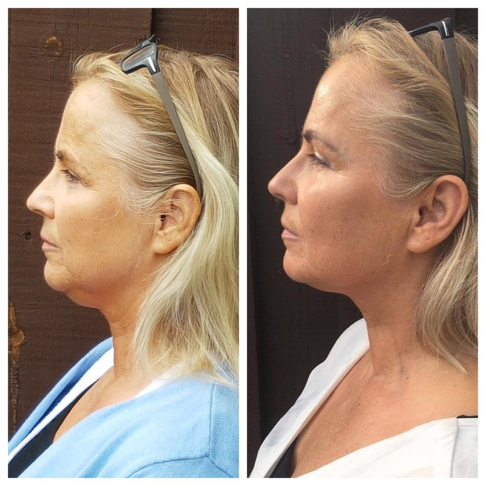 - Face Yoga exercises tighten and tone, creating a more defined neck and jawline.