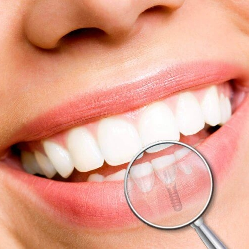 implantologia-dental-blog.jpg
