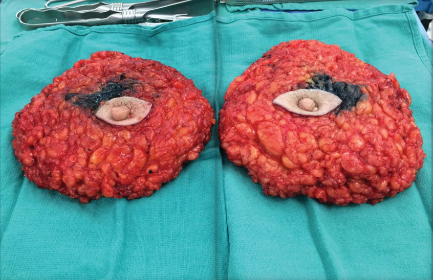 Thedra Cullor-Ledford Bilateral Mastectomy (2015)Fine Art Print on Kappa 40 x 60 cm
