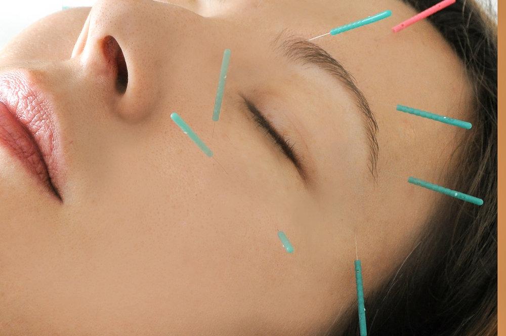 Αισθητικός βελονισμός - Η τεχνική του βελονισμού μπορεί να χρησιμοποιηθεί για θεραπευτικούς λόγους στην επιδερμίδα, με πολύ ικανοποιητικά αποτελέσματα στην αισθητική του προσώπου, και γενικά σε όλο το δέρμα.