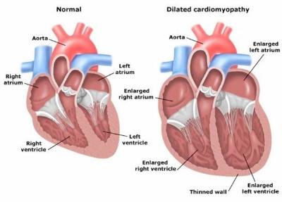 DCM Heart.jpg