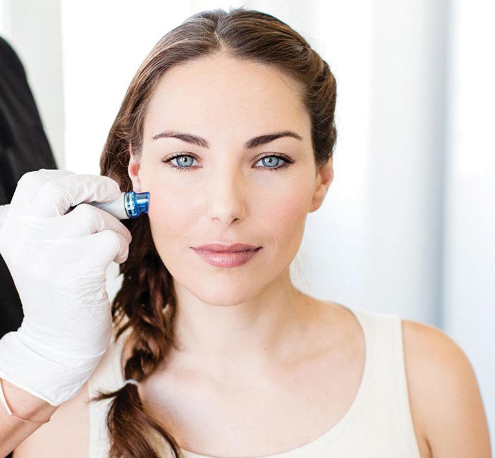 Hydrafacial es uno de los tratamientos más novedosos para devolver luminosidad a la piel.