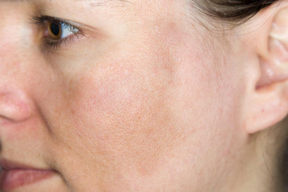 MELASMA   Enfermedad pigmentaria adquirida y crónica de la piel, caracterizada por manchas café en cara de predominio en frente, mejillas y dorso de la nariz, este padecimiento afecta más a mujer, sin embargo también puede presentarse en hombres, provocando alteraciones cosméticas importante. El tratamiento consiste en diferentes protocolos con resultados exitosos.