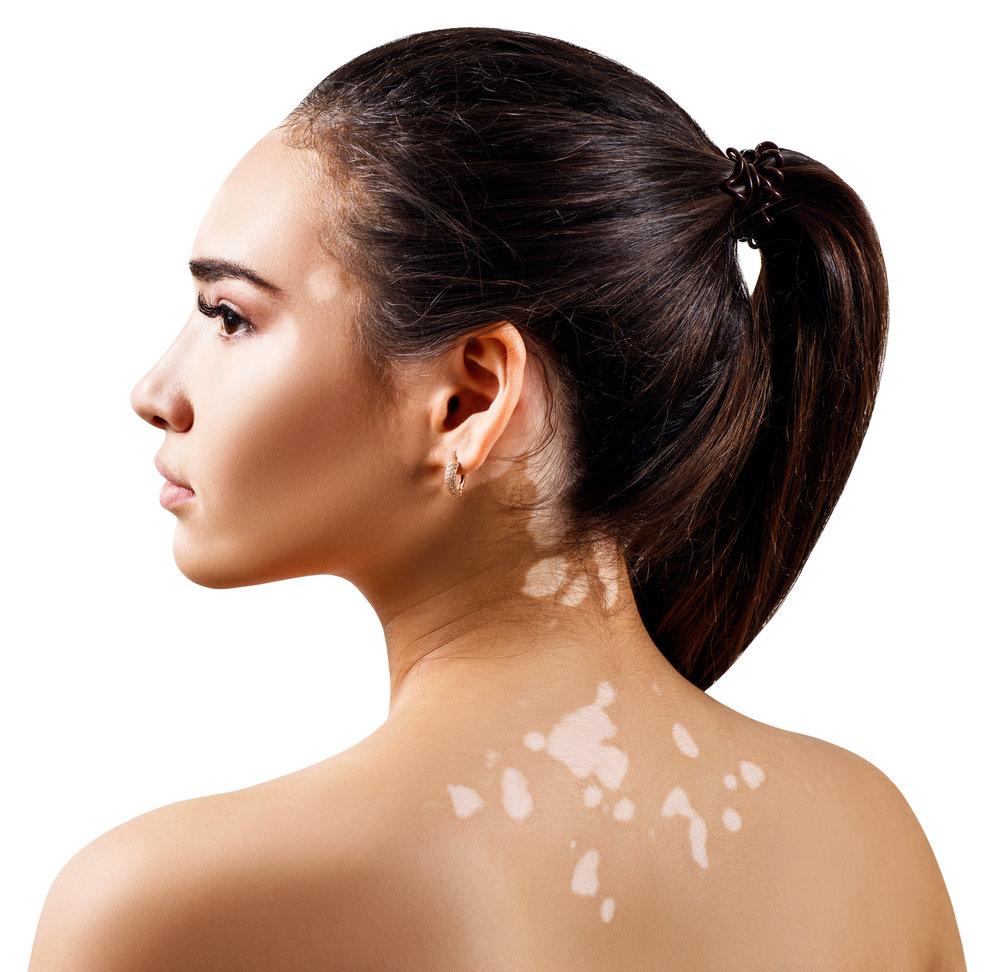 VITILIGO   Padecimiento muy frecuente caracterizado por manchas con pérdida del color total de la piel conocido como manchas acrómicas, intervienen factores genéticos, inmunológicos, con evolución benigna, afectando desde un segmento de la piel o varios segmentos.