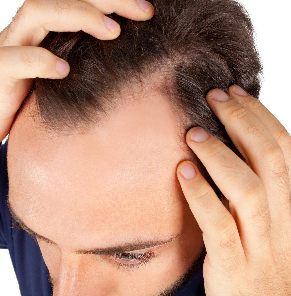 ALOPECIA   Alteración de la piel cabelluda, con perdida progresiva de los folículos pilosos, por diferentes causas, el factor hormonal es el más común afectando mujeres y hombres. Debe realizarse un interrogatorio y estudio completo de cada paciente para poder diferenciar entre todos los tipos de alopecia y dar el tratamiento más adecuado.