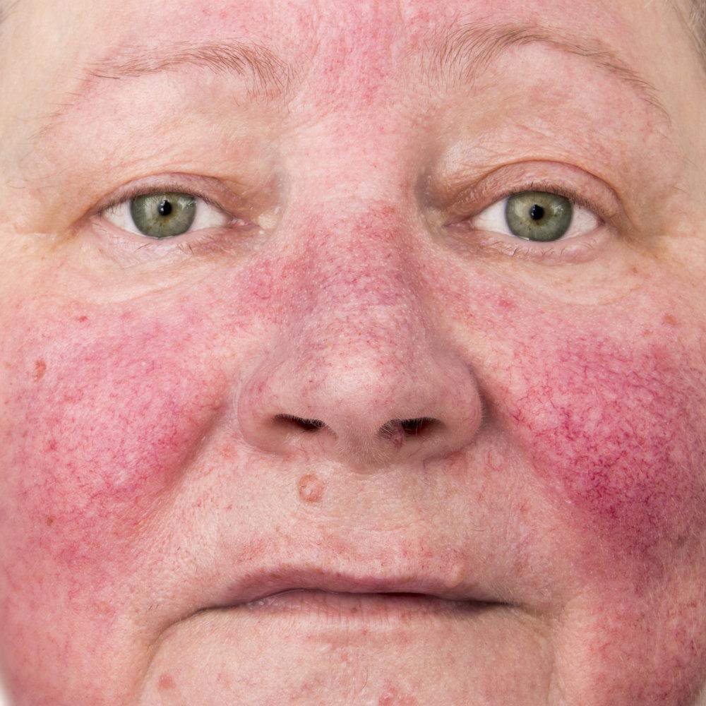 """ROSACEA   Padecimiento inflamatorio de la piel, que se presenta principalmente como """"cara roja"""" y lesiones inflamatorias que pueden confundirse con acné y otras dermatosis, existen cuatro tipos distintos según sus signos y síntomas que se controlan con diferentes tratamientos tópicos y orales."""