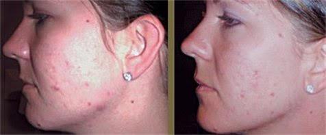 acne .jpg