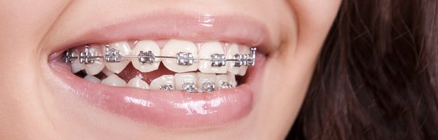 orthodontics-fastbraces-s1-625x200.jpg