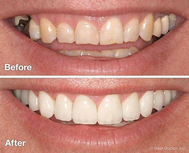 Don't ever be afraid to SMILE ! A smile makeover is the process of improving the appearance of the smile through one or more cosmetic dentistry procedures, such as: Dental veneers. Composite bonding. Tooth implants. Teeth whitening.  Advanced Dental Artistry does it all !