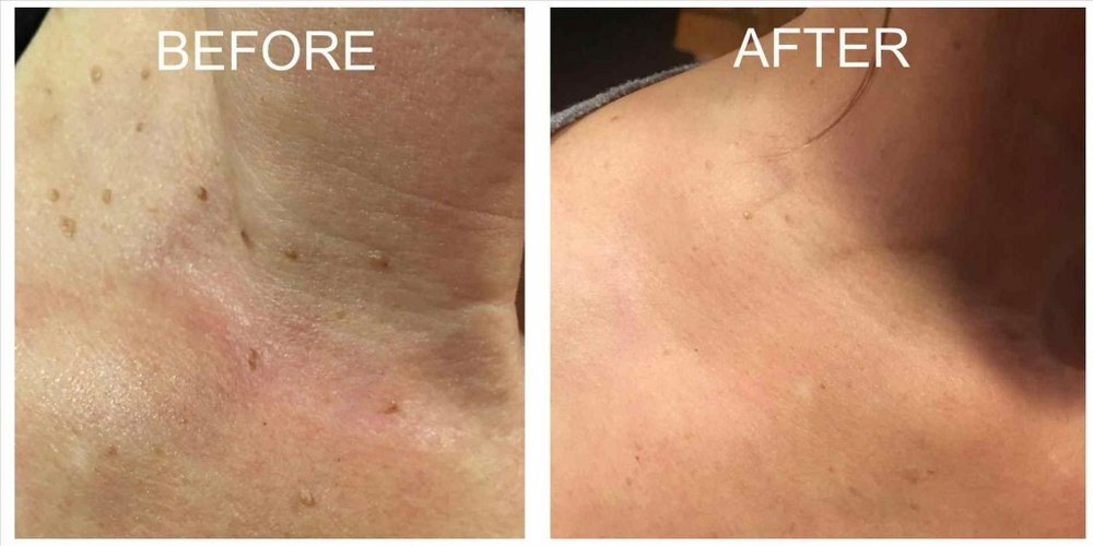 Benign-Epidermal-Pigmented-Lesions-Treatment-Before-and-After
