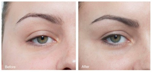 Cosmetic-Eyeliner-Tattoo-Before-and-After