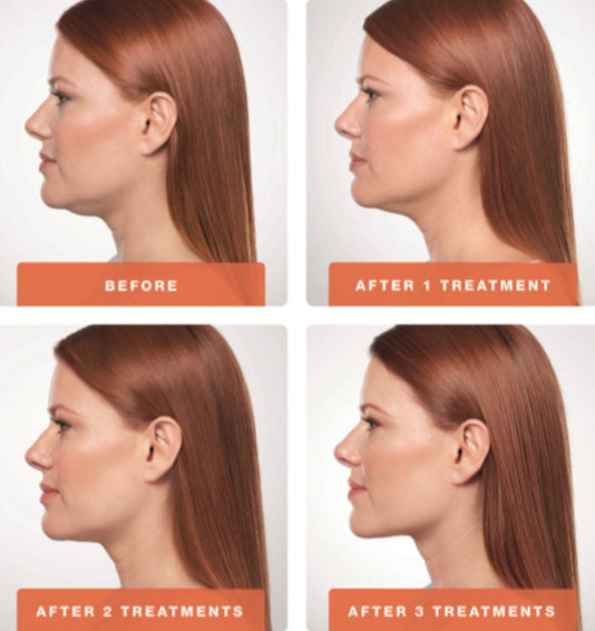 Belkyra-Double-Chin-Treatment-Before-and-After