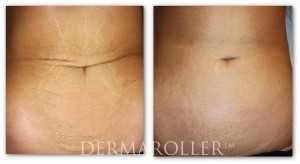 Stretch-Marks-CIT-Before-After