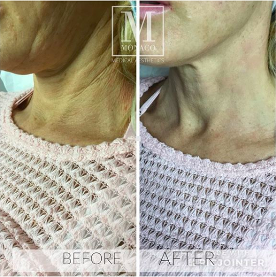 Threadlift-with-Absorbable-Sutures-Before-and-After