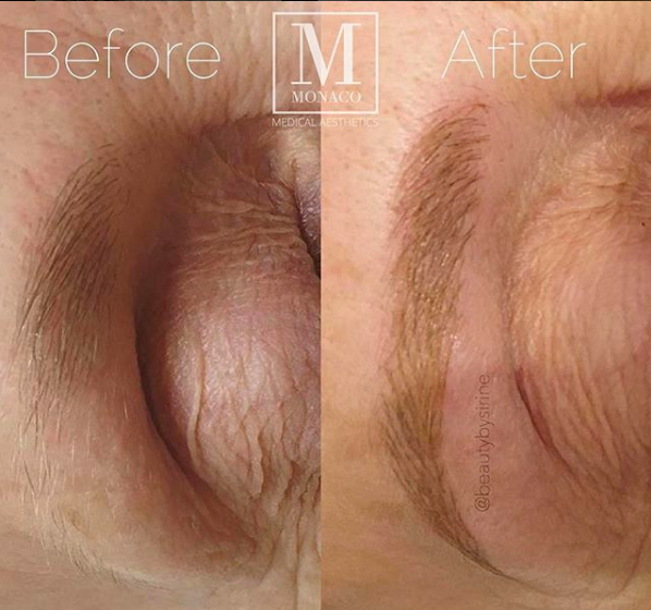 Microblading-Eyebrow-Embroidery-Before-and-After