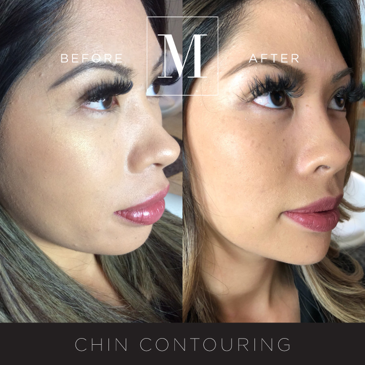 DERMAL_Chin-Contouring-BA1.jpg