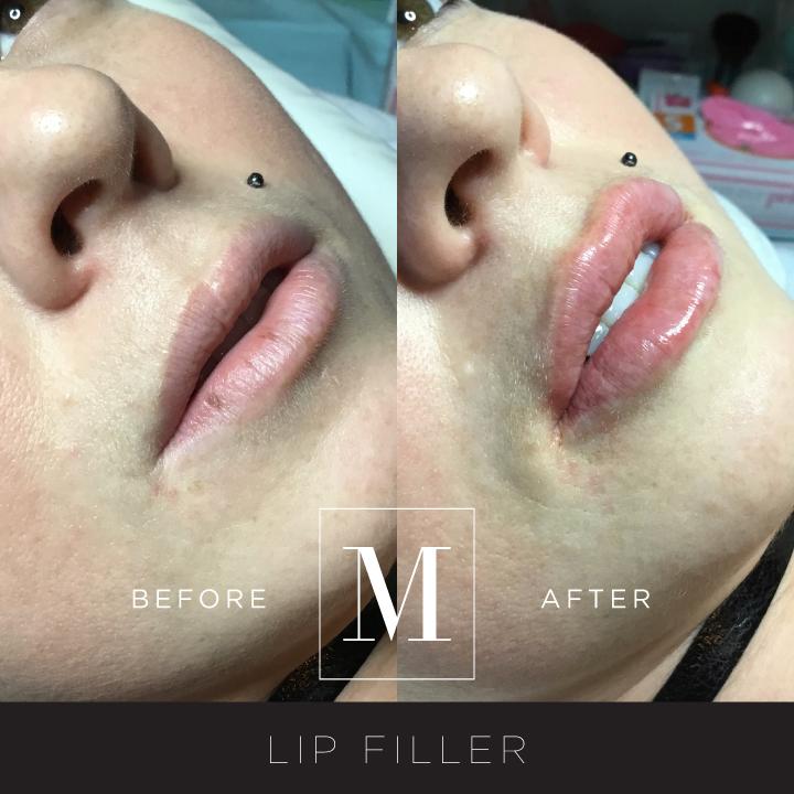 DERMAL_Lips-BA1.jpg