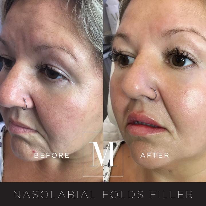 DERMAL_Nasolabial-Folds-BA1.jpg