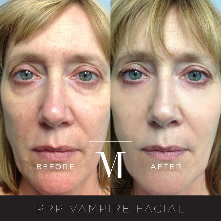 PRP_Facial-BA1.jpg