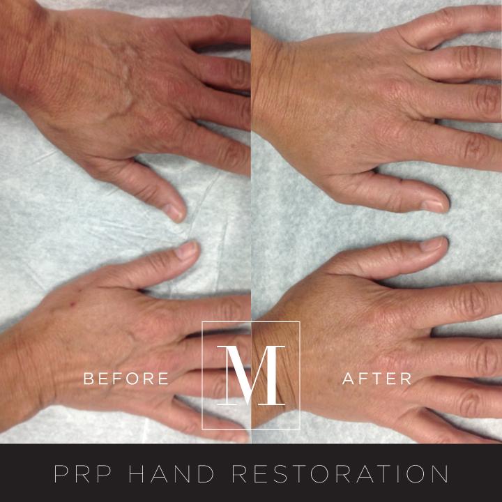 PRP_Hand-BA1.jpg