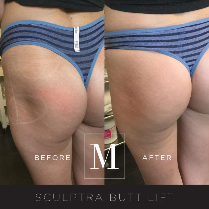SCULPTRA_Butt-BA1.jpg