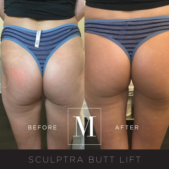 SCULPTRA_Butt-BA2.jpg