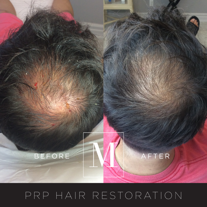 PRP_Hair-BA2.jpg