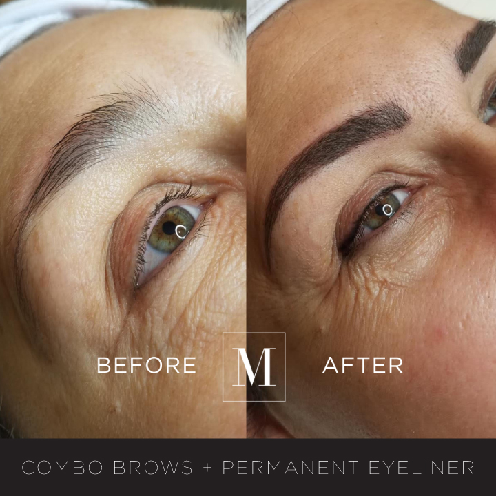 ComboBrows+Eyeliner-BA.jpg