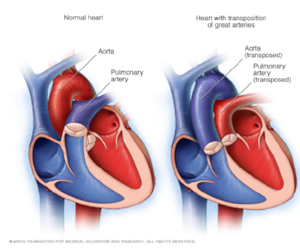 Transposition of the great arteries (TGA) occurs when the aorta is connected to the right ventricle, and the pulmonary artery is connected to the left ventricle — the opposite of a normal heart's anatomy. TGA is fatal if not diagnosed and treated immediately (shortly after birth).