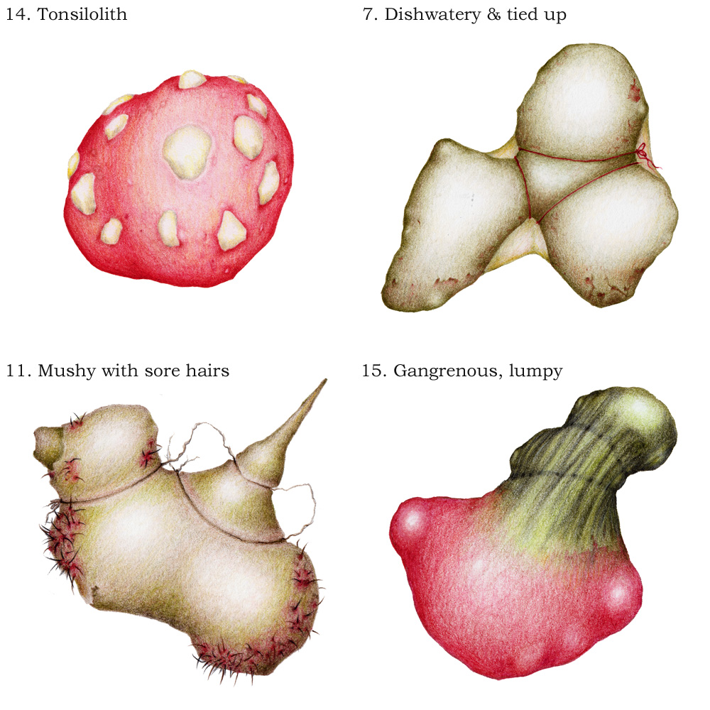 Image description; 4 colour pencil drawings of; a red lump with white rocky inclusions labeled '14. Tonsilolith', an olive green trilobed object with red string on it labeled '7. Dishwatery & tied up', a brown irregular object with black hairs (reddish at base) and brown string labeled '11. mushy with sore hairs', and an irregular object dark green at the top & bright pink at the bottom, labeled ' 15. Gangrenous, lumpy'.