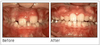 Phase-One Treatment - In some cases, parents are concerned about the way their children's permanent teeth are growing in, and with this type of process, the situation can be rectified before the teeth have a chance to grow in the wrong way.