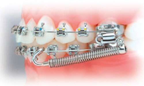 Forsus Spring - We use these springs when you have a severe overbite. They are locked onto you braces and wires, so you cannot take them in and out. They are the equivalent of having hydraulics on your car. Very stylish!