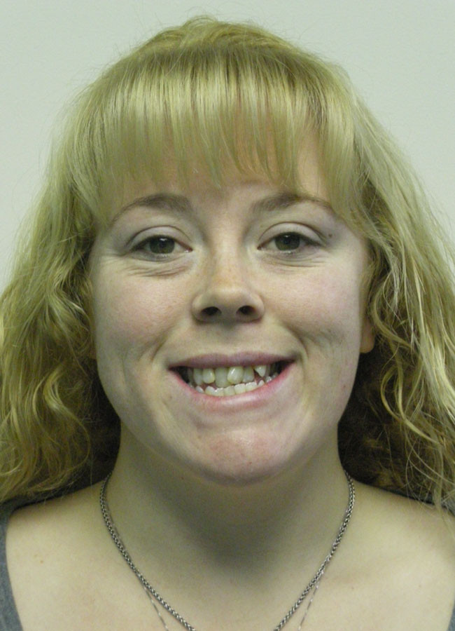 Tiffani C.    Before Orthodontic Treatment