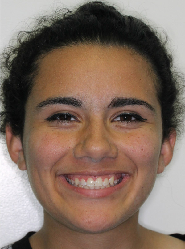 Alexa H.    After Orthodontic Treatment