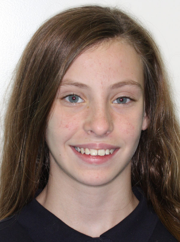 Hannah H.    Before Orthodontic Treatment