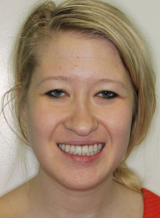Elena S.    After Orthodontic Treatment