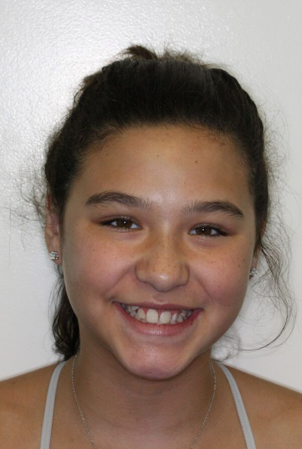 Madison M.    Before Orthodontic Treatment