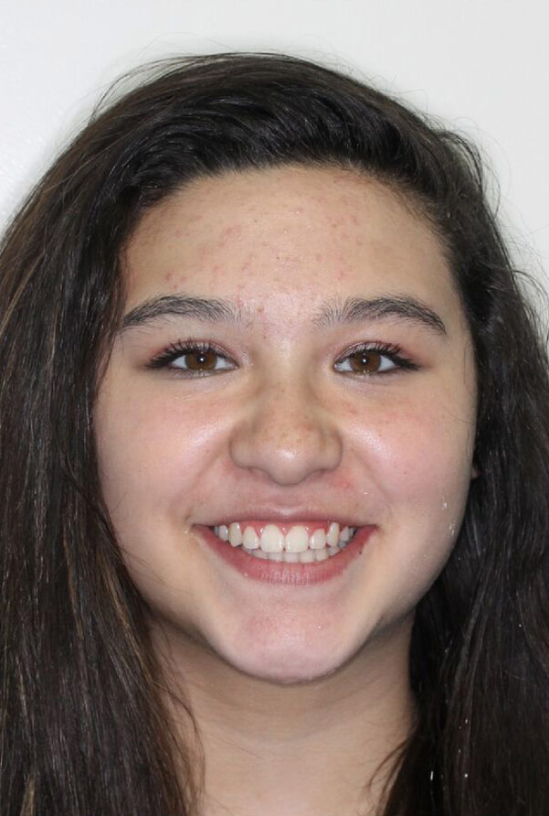 Madison M.    After Orthodontic Treatment