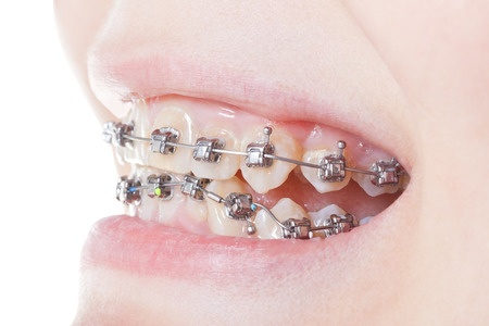 Self-Ligating-Braces-Beecroft-Orthodontics.jpg
