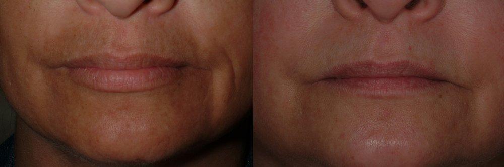 Upper lip melasma treated with a unique combination laser technique