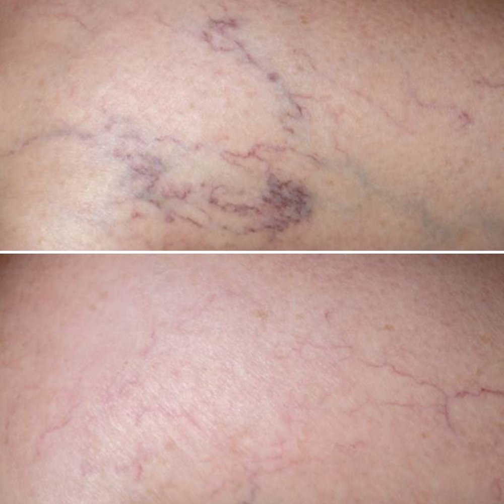 Patient treated with Sclerotherapy for leg veins