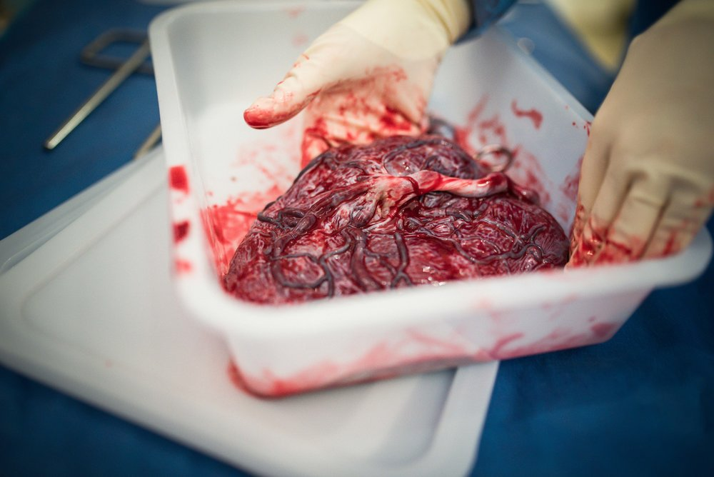 showing placenta in bowl